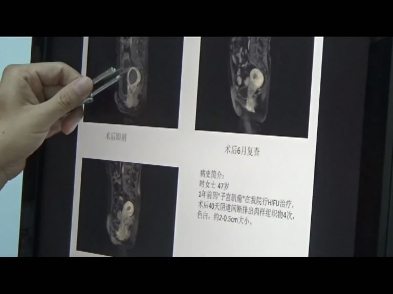 子宫专病门诊案例分享09期