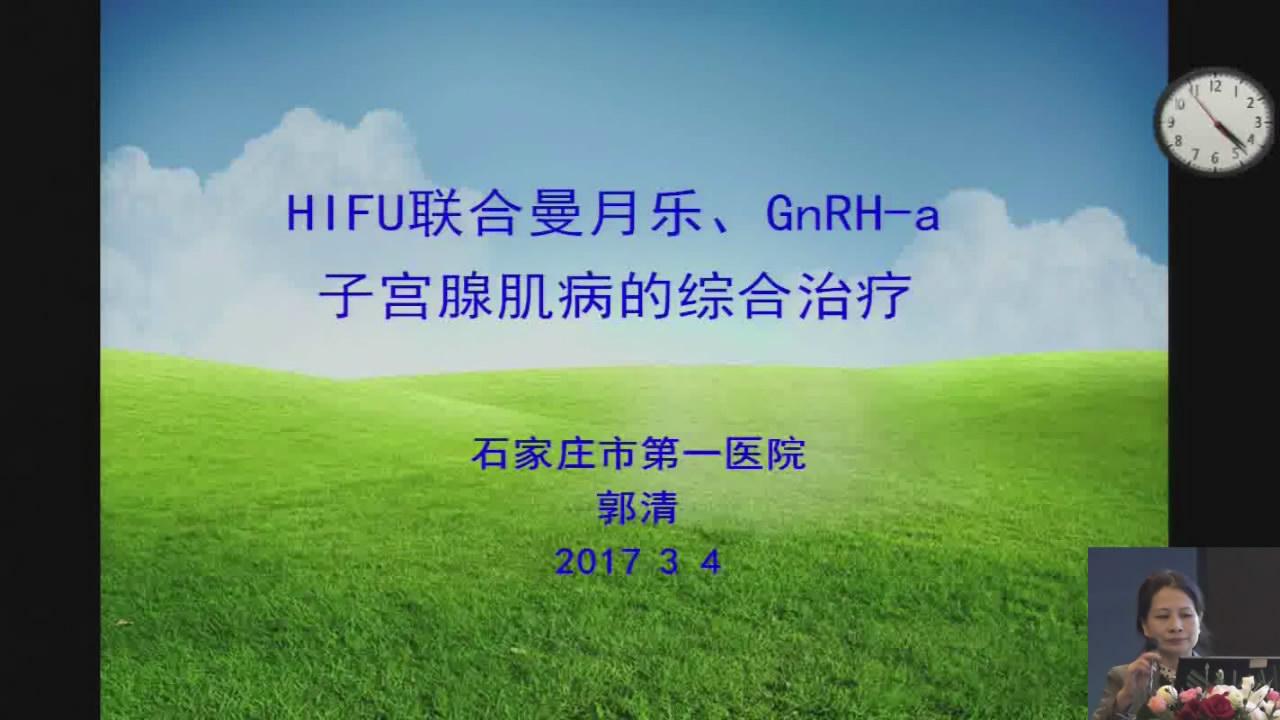 HIFU联合曼月乐、GnRH-a子宫腺肌病的综合治疗