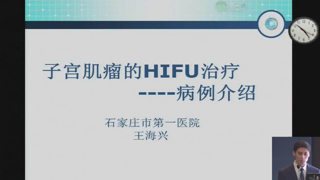 子宫肌瘤的HIFU治疗病例介绍