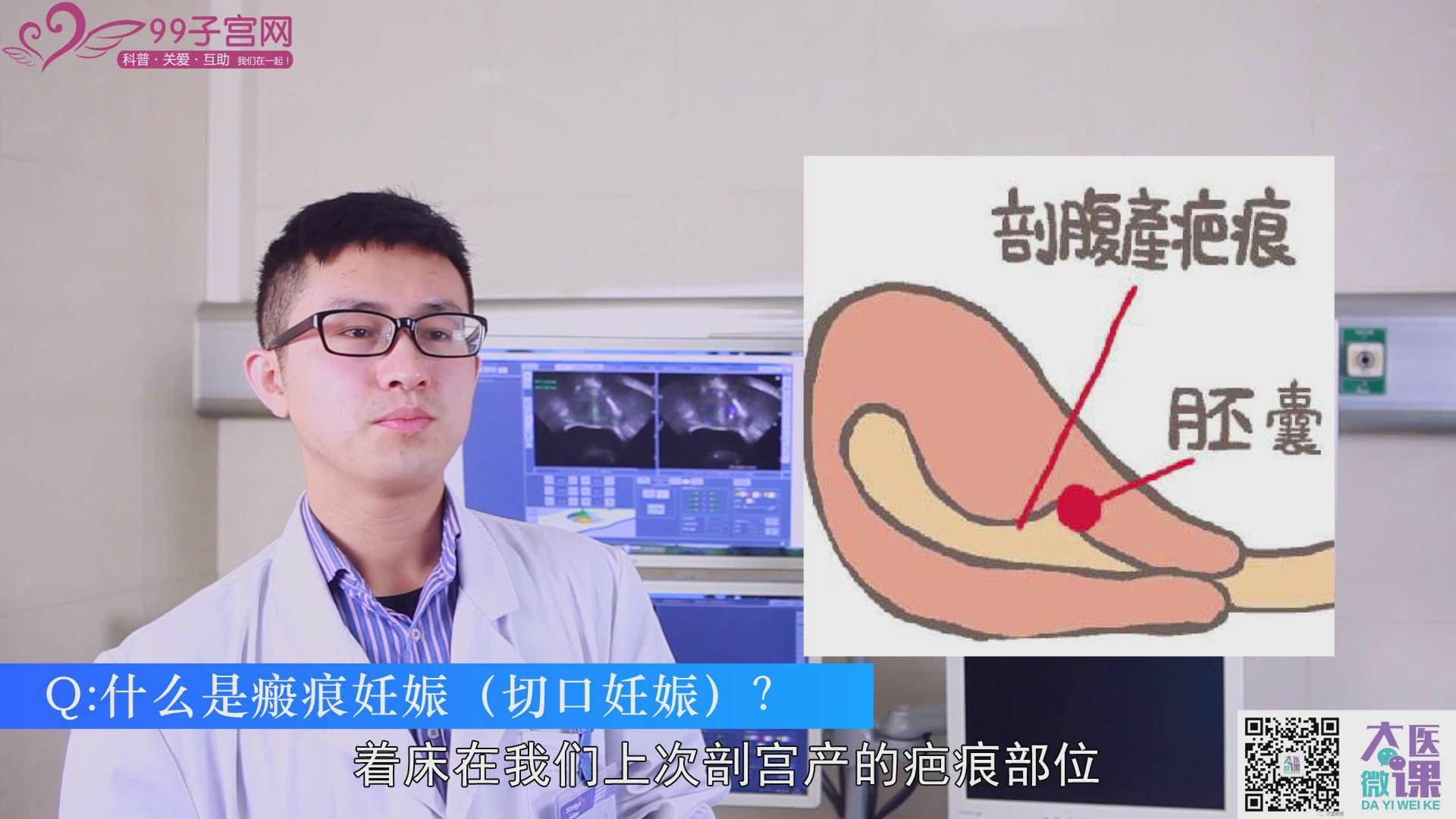 【微课问答】什么是瘢痕妊娠
